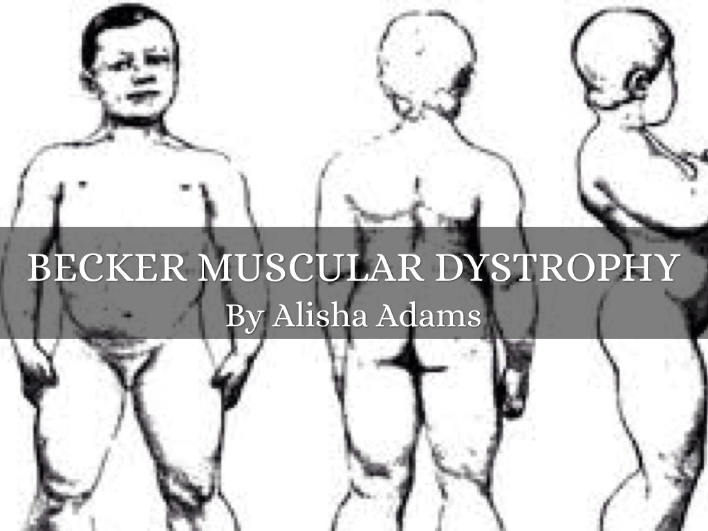 muscular dystrophy Facioscapulohumeral muscular dystrophy (fshd) is broadly characterized as a  neuromuscular disease (nmd), as are all types of muscular dystrophy muscular .