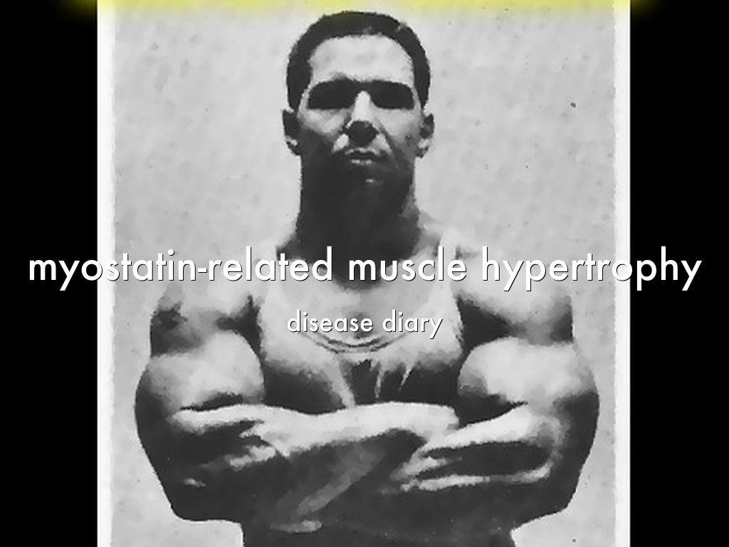 myostatin boy Looking for online definition of myostatin in the medical dictionary myostatin explanation free what is myostatin meaning of myostatin medical term what does myostatin mean.