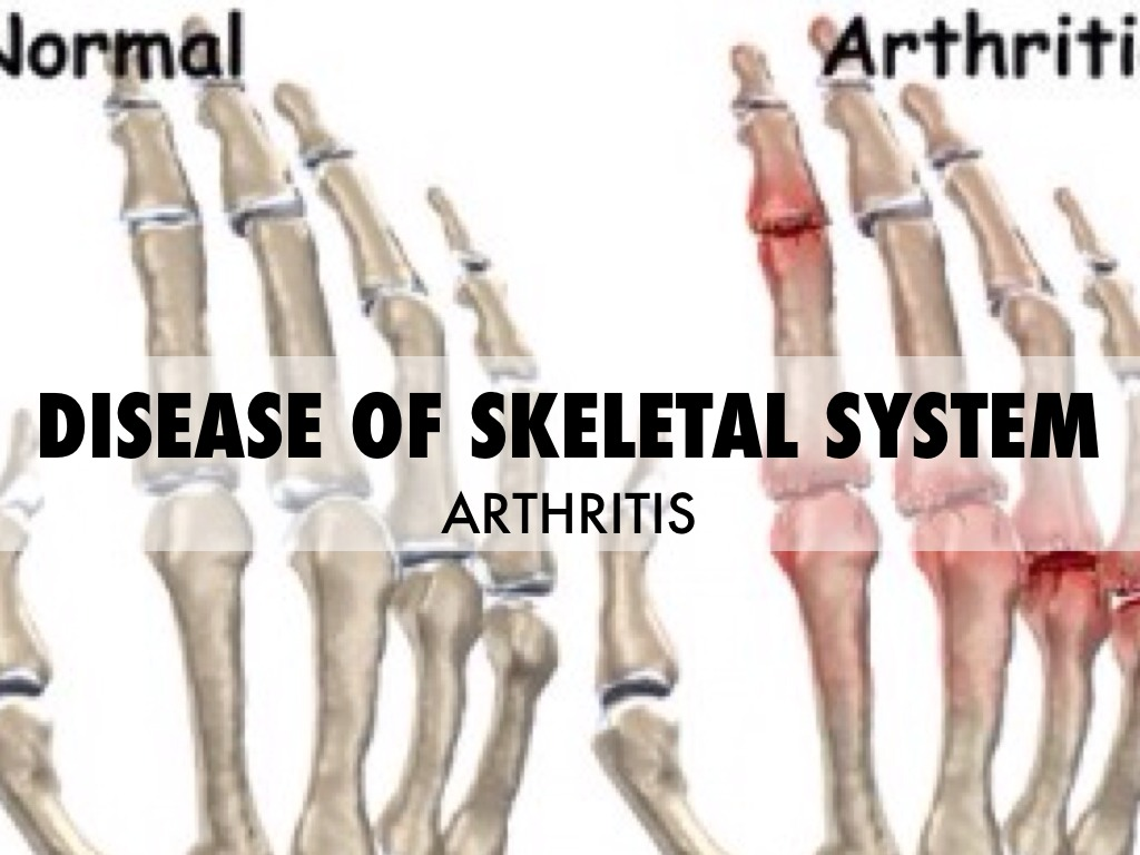 DISEASE OF SKELETAL SYSTEM
