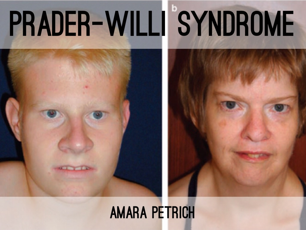 a description of prader willi syndrome Prader-willi syndrome is a disease that is present from birth (congenital) it affects many parts of the body people with this condition feel hungry all the time and become obese.