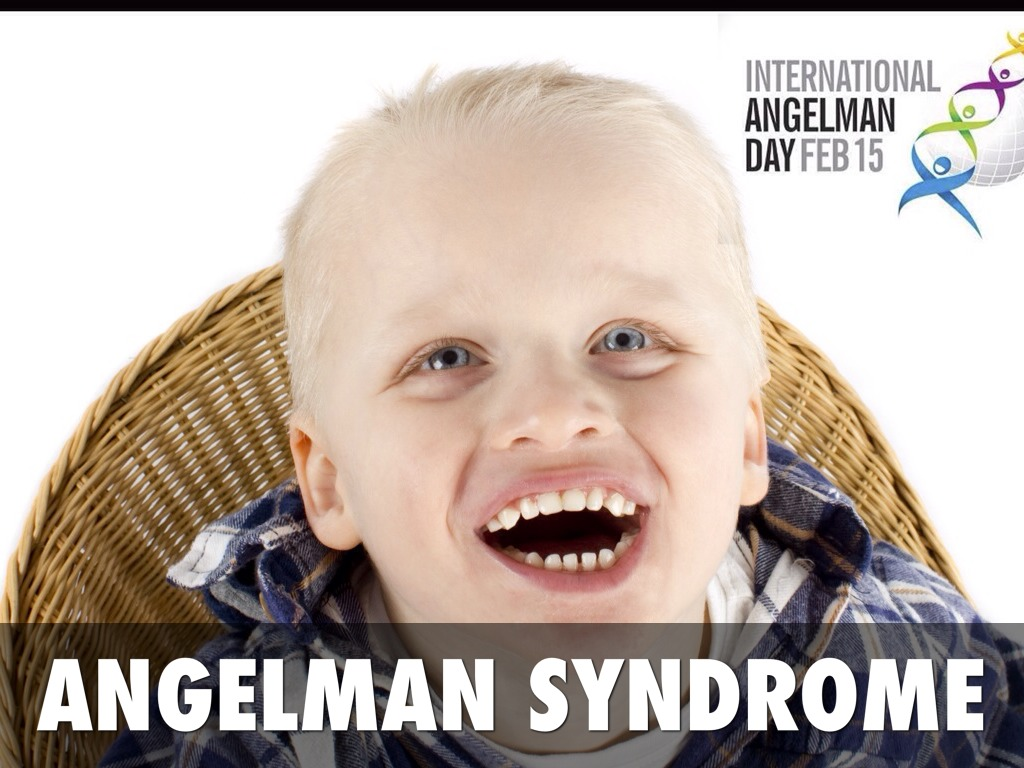 angel man syndrome Angelman syndrome is a complex genetic disorder that primarily affects the nervous system characteristic features of this condition include delayed development, intellectual disability, severe speech impairment, and problems with movement and balance (ataxia) most affected children also have .