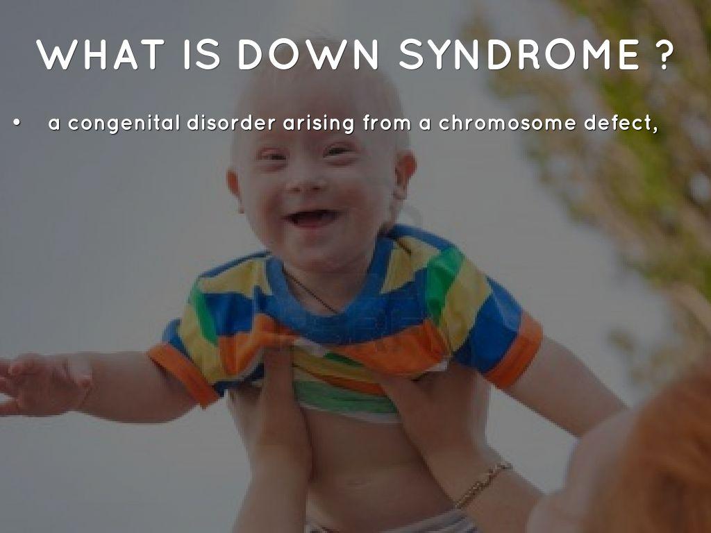 a description of down syndrome as a chromosomal disorder