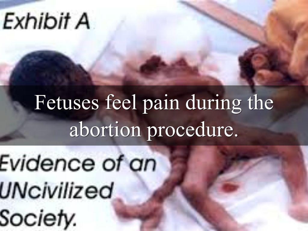 Adult Abortion 64