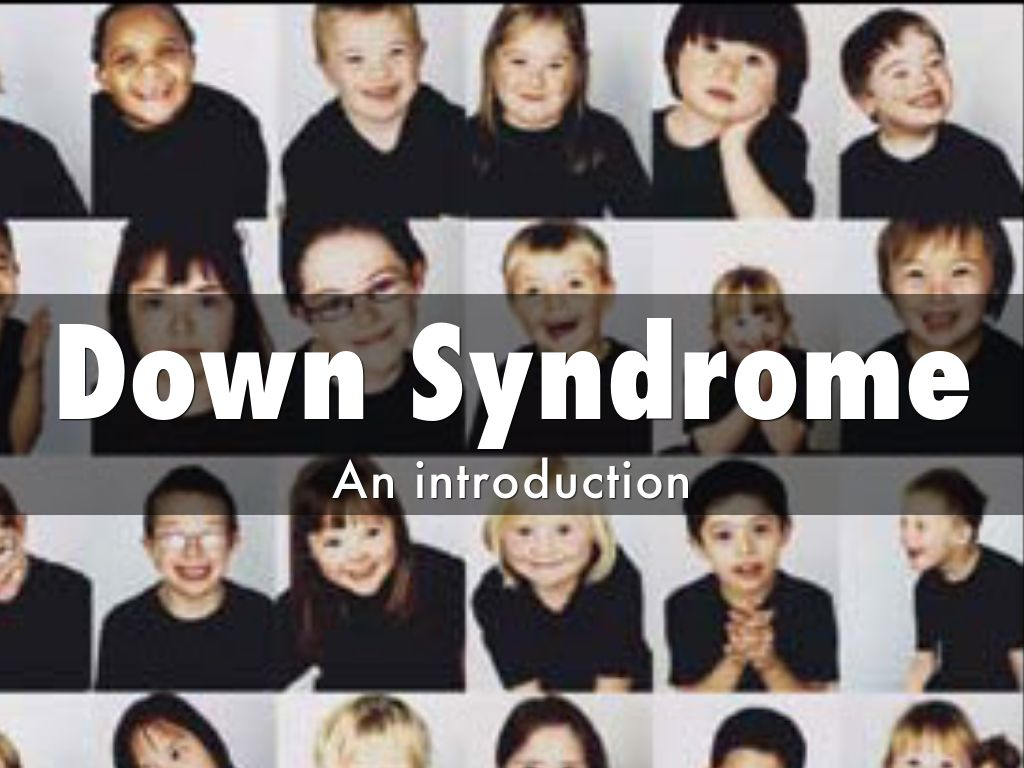 down syndrome outline Speech development for children with down syndrome posted on april 21, 2013 by techcheck children with down syndrome (ds) are usually good communicators,.