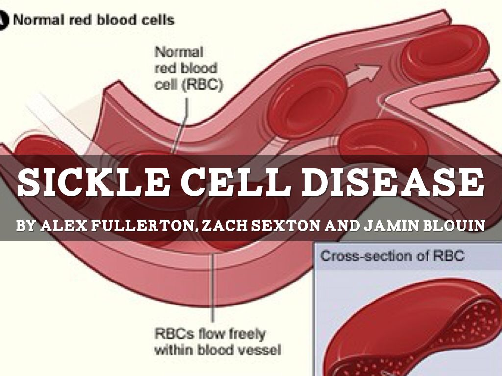 sickle cell anemia essay conclusion Sickle cell anemia 3 pages 837 words march 2015 saved essays save your essays here so you can locate them quickly topics in this paper.