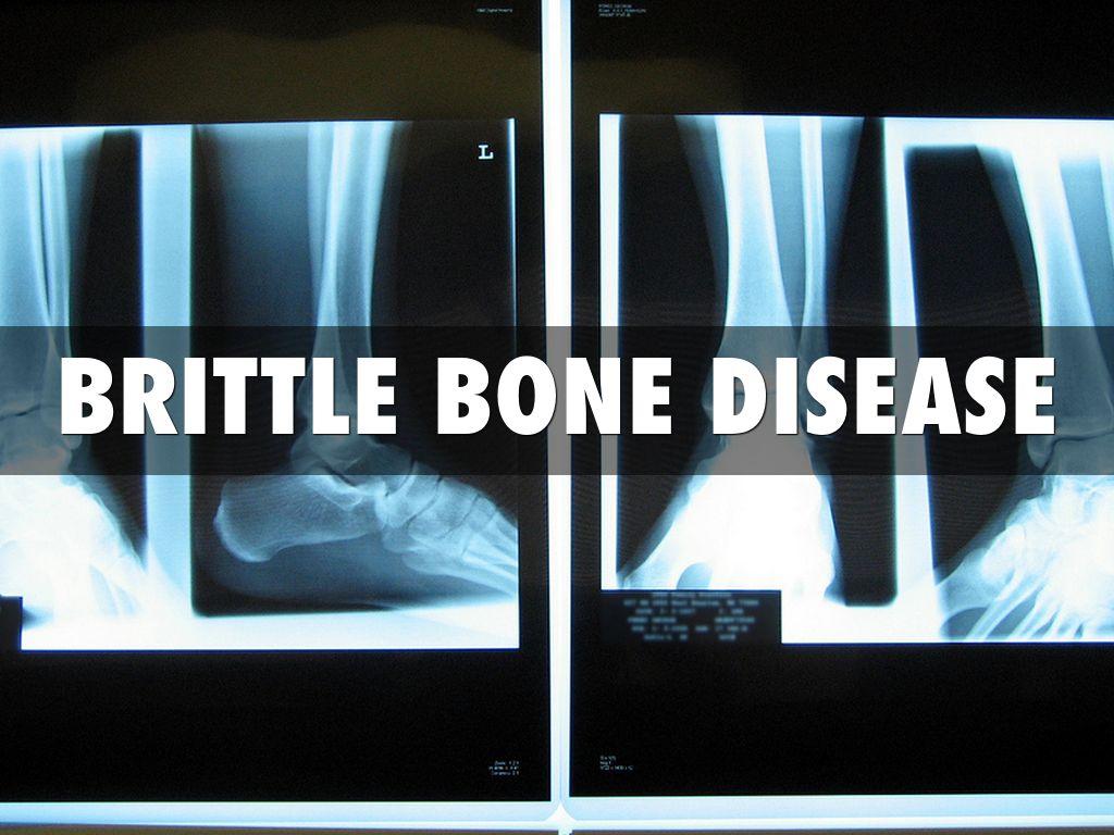 Brittle Bone Disease