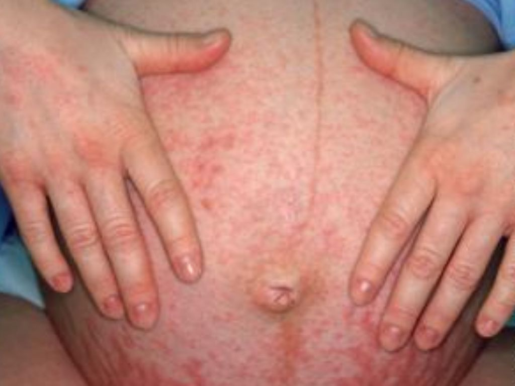 Что такое холестаз на коже 141