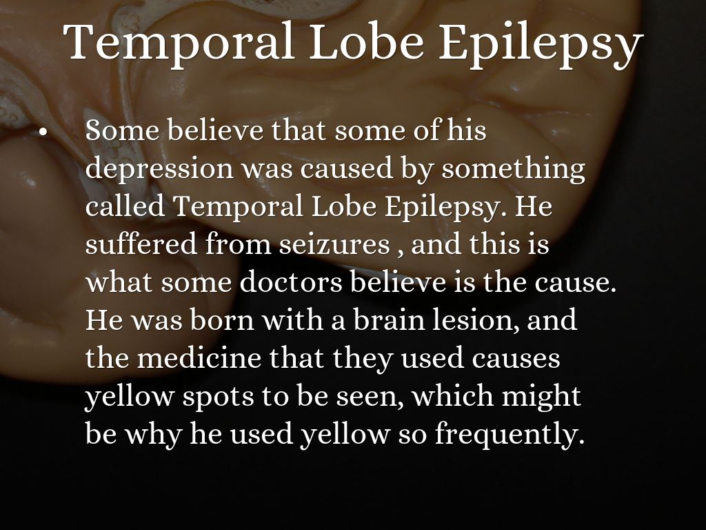 temporal lobe epilepsy Complex partial-onset seizure often, these begin as simple seizures in a part of the brain known as the temporal or frontal lobe complex.