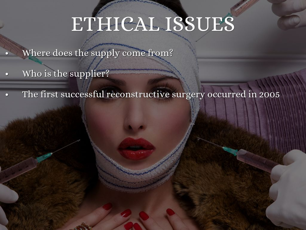 ethical issues with plastic surgery Do you know how to write a+ ethical dilemma essays if no,  ethical dilemma essays: 10 awesome ideas and paper sample  should young adolescents do plastic surgery.