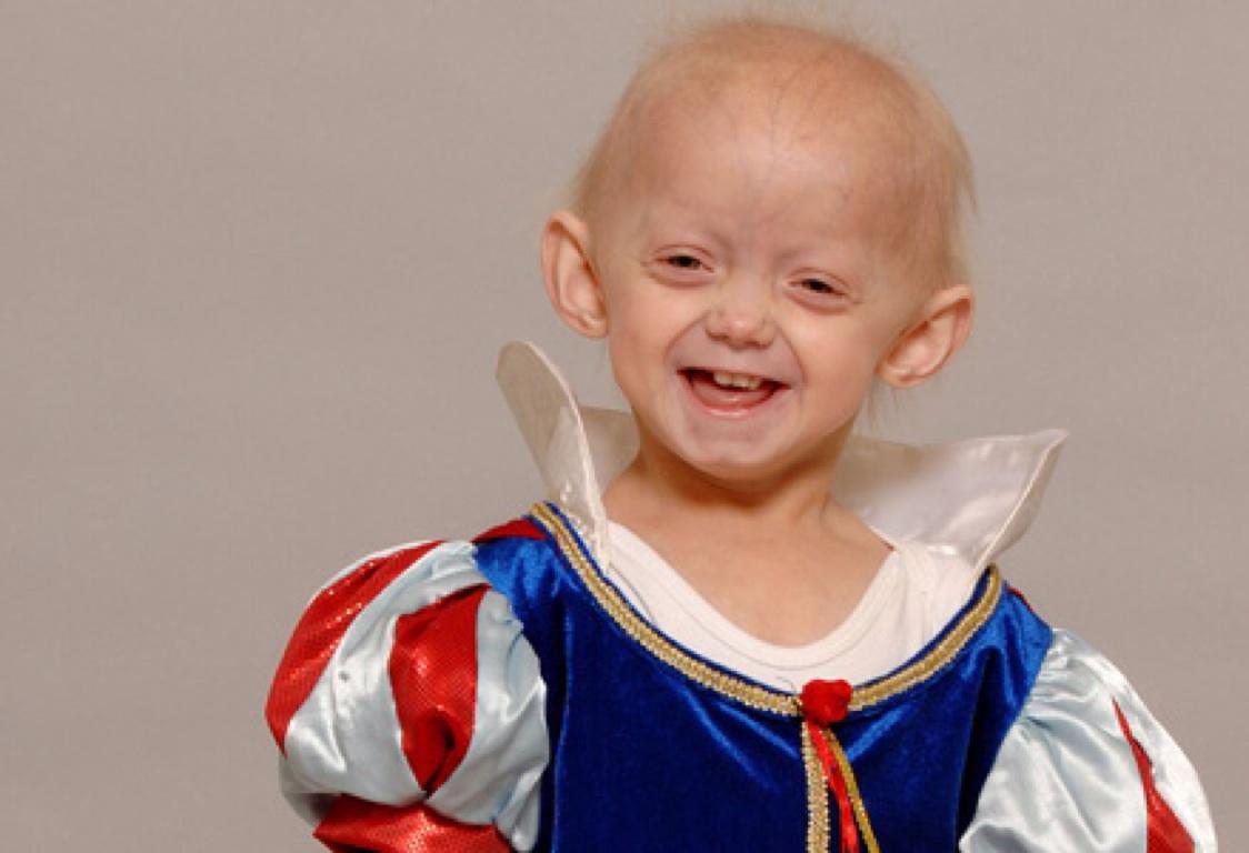 By Progeria Katie Parsons By Katie Progeria Parsons nO0w8Pk