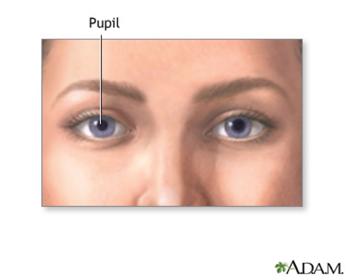 Anisocoria, or differently sized pupils 77