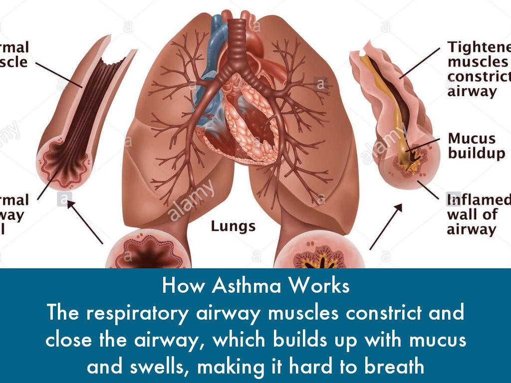 the symptoms causes and diagnosis of asthma