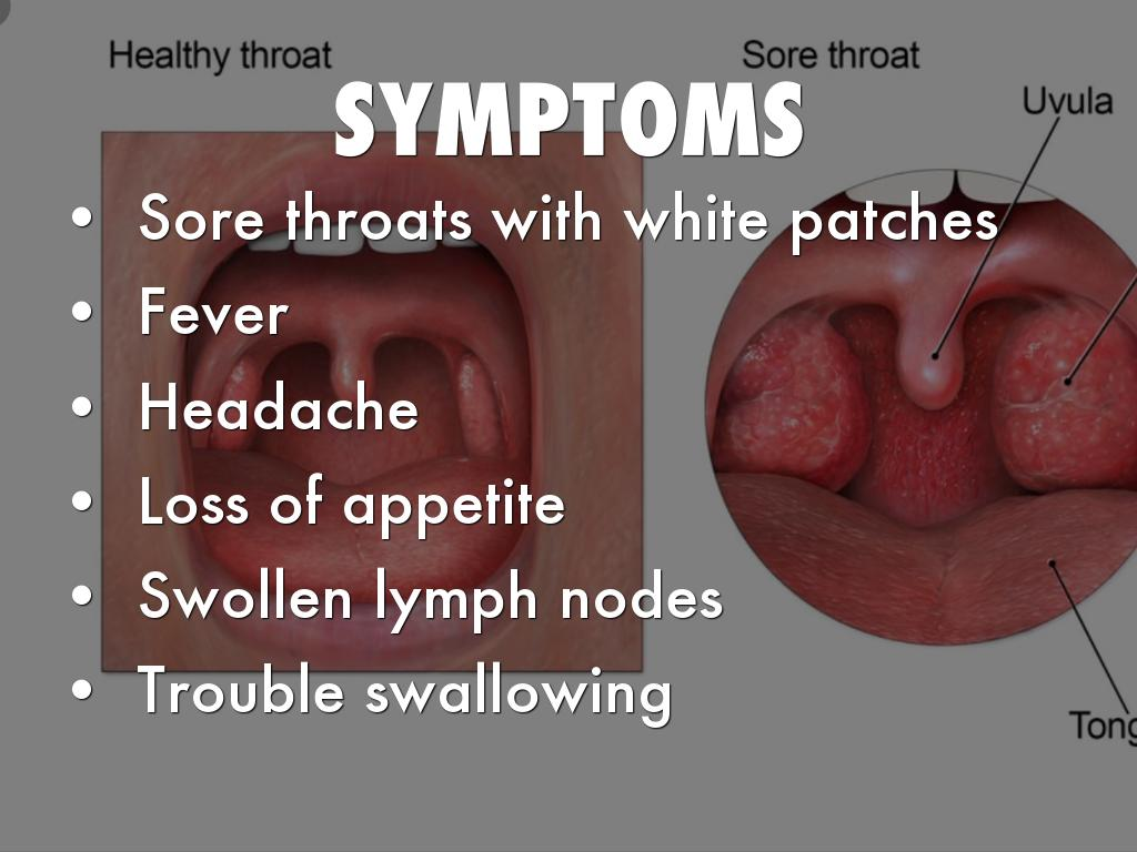 white patchy tongue and sore throat